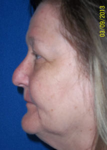 Blepharoplasty02ABefore