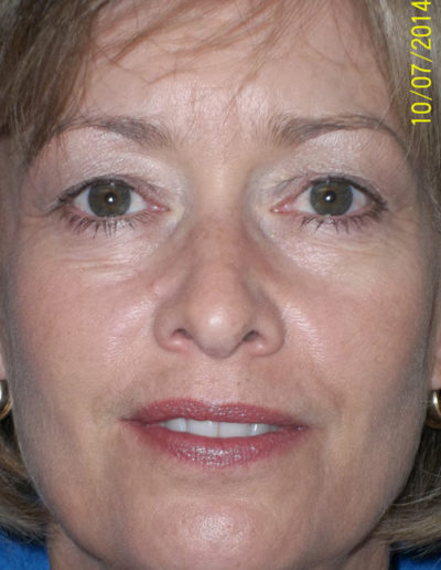 Blepharoplasty03ABefore