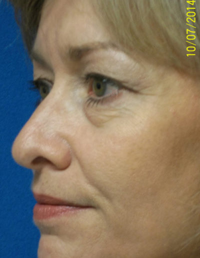 Blepharoplasty04ABefore