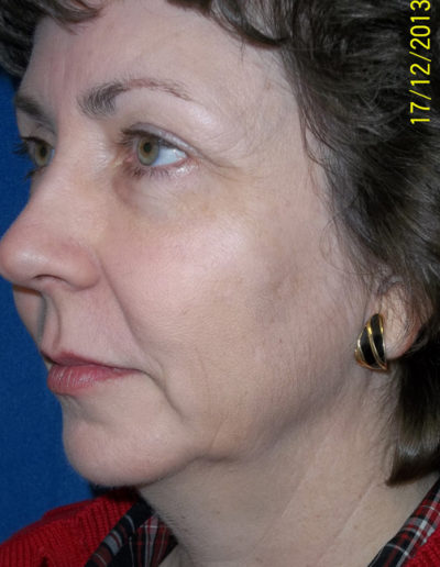 Blepharoplasty06ABefore