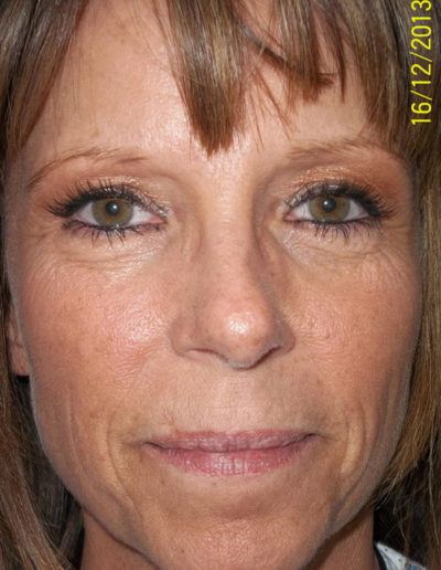 Blepharoplasty09ABefore