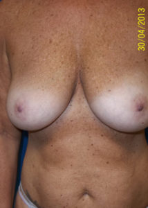 Breast Lift01ABefore