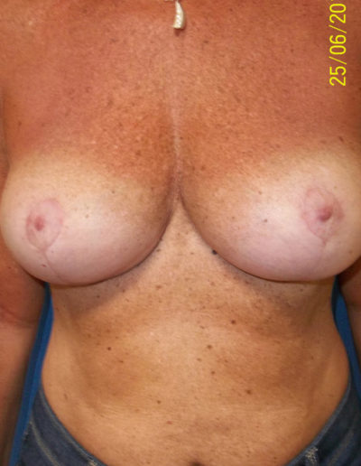Breast Lift01BAfter