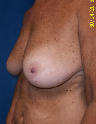 Breast Lift02ABefore