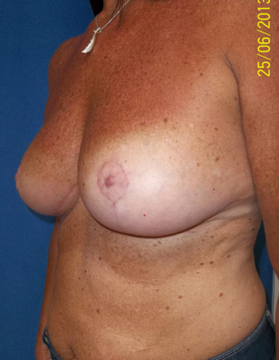 Breast Lift02BAfter