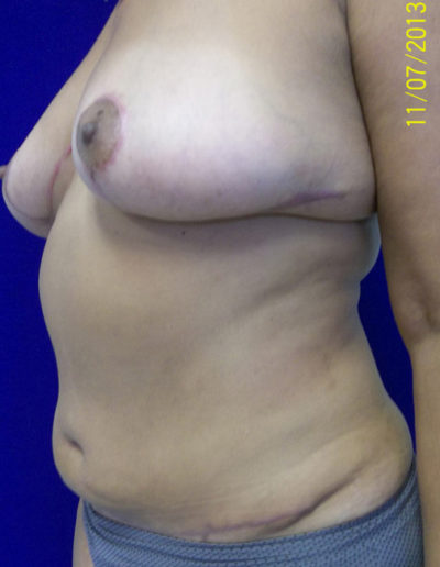 Female Breast Red01BAfter