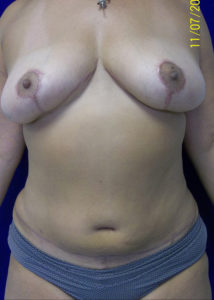 Female Breast Red02BAfter