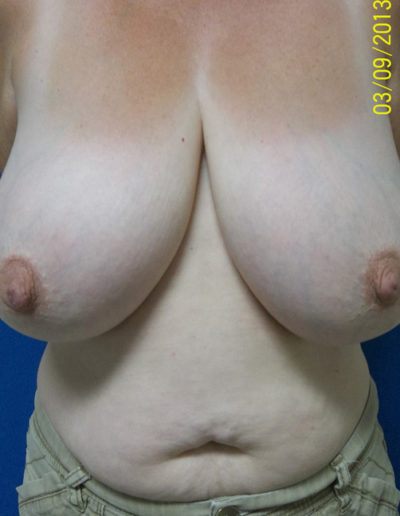 Female Breast Red03ABefore