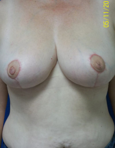 Female Breast Red03BAfter