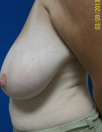 Female Breast Red04ABefore
