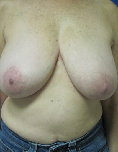 Female Breast Red05ABefore