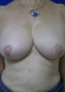 Female Breast Red05BAfter