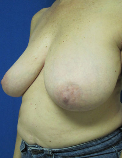 Female Breast Red06ABefore