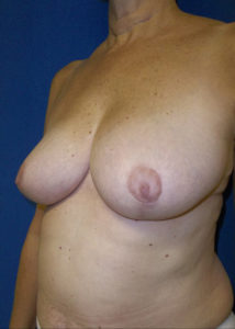 Female Breast Red06BAfter