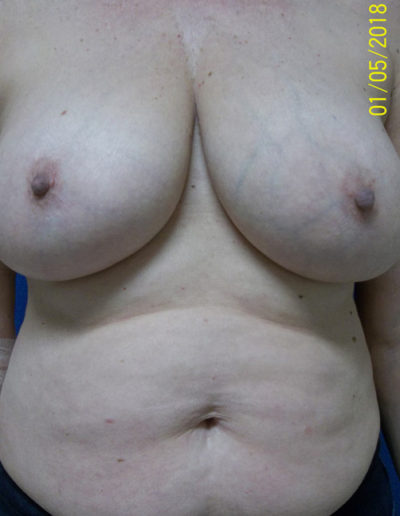 Female Breast Red08ABefore