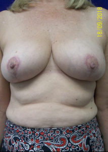 Female Breast Red08BAfter