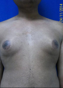 Male Breast Reduction01ABefore