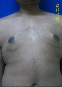 Male Breast Reduction01BAfter