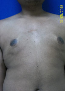 Male Breast Reduction02ABefore