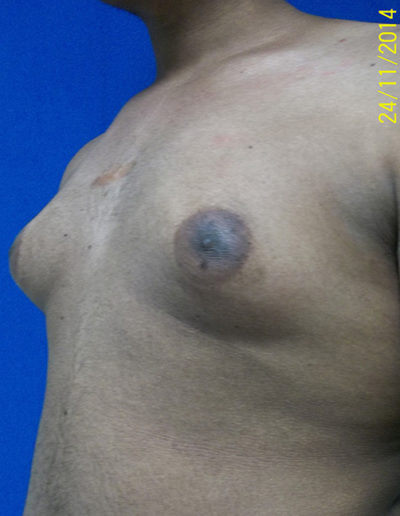 Male Breast Reduction03ABefore