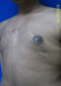 Male Breast Reduction03BAfter
