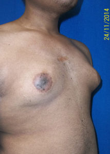Male Breast Reduction04ABefore