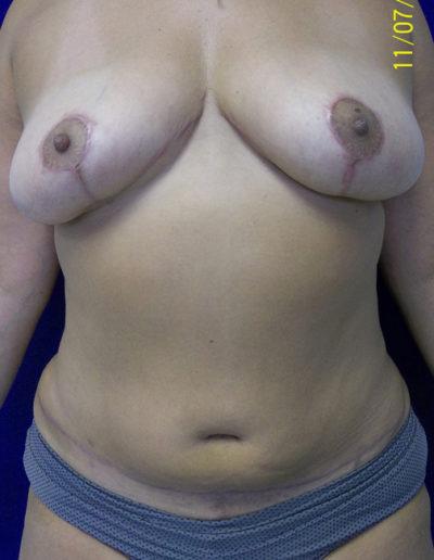 TummyTuck04BAfter