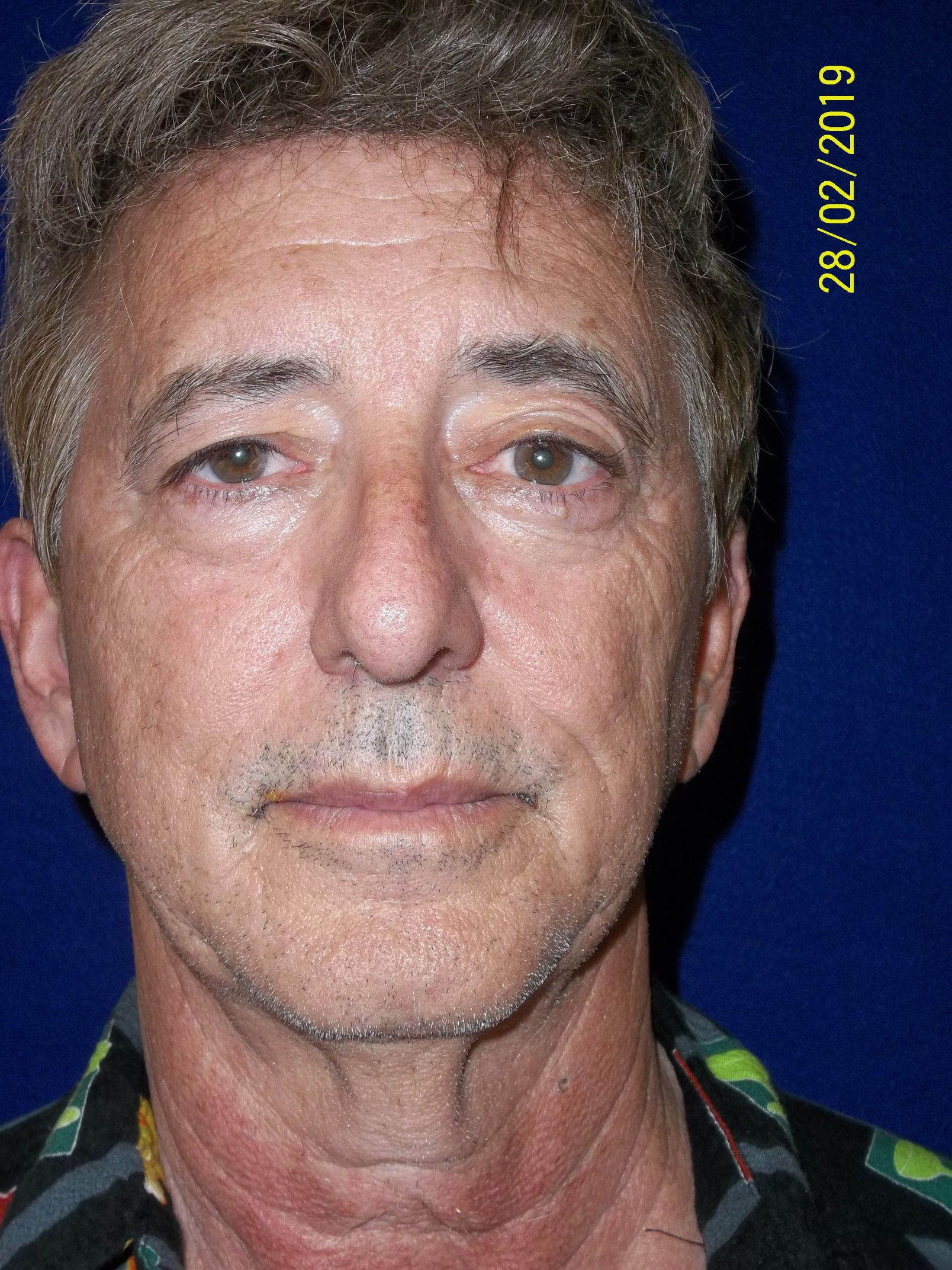 Eye Lid Surgery Tampa FL | Blepharoplasty Surgery Tampa FL ...