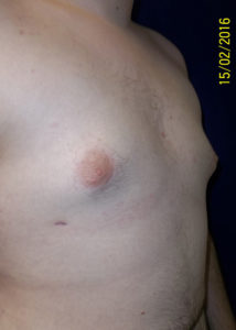 Breast Reduction02BAfter