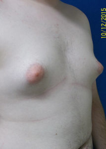 Breast Reduction03ABefore