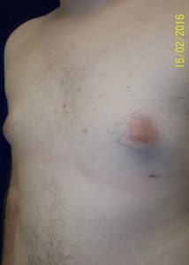 Breast Reduction03BAfter