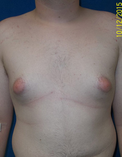 Breast Reduction04ABefore