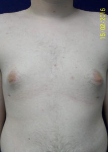 Breast Reduction04BAfter