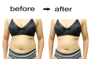 liposuction consultation