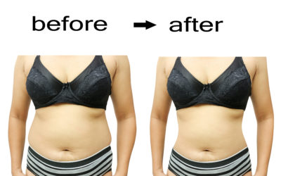 Liposuction and Body Shaping