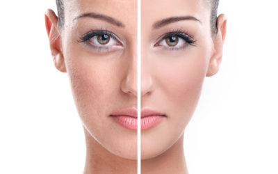 Plastic Surgery Procedures That Make Your Face Look Younger: Nose Work