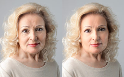 Plastic Surgery Procedures That Make Your Face Look Younger: Facelift