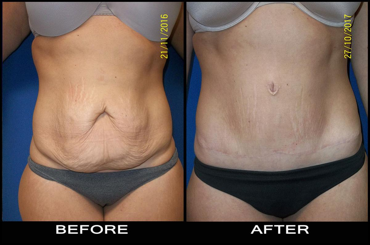 beforeafter-tummy3