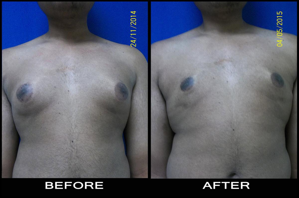 beforeafter reduction