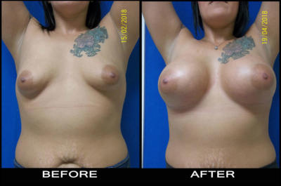 beforeafter-aug1