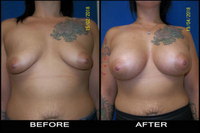 beforeafter-aug2