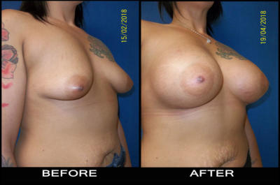 beforeafter-aug3