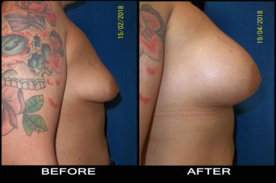 beforeafter-aug4